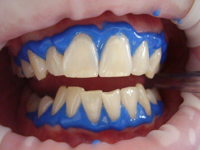 laserové bělení zubů